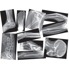 RYL R5914 Roylco Broken Bones X-rays Set RYLR5914