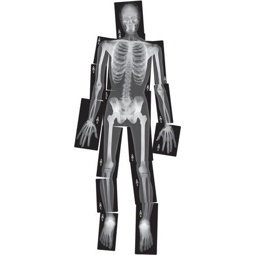 Roylco Human X-Ray - Theme/Subject: Radiology - Skill Learning: Radiography - 4+ - 18 / Pack