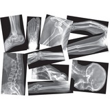 RYLR5914 - Roylco Broken Bones X-rays Set
