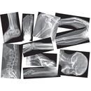 Roylco Broken Bones X-rays Set