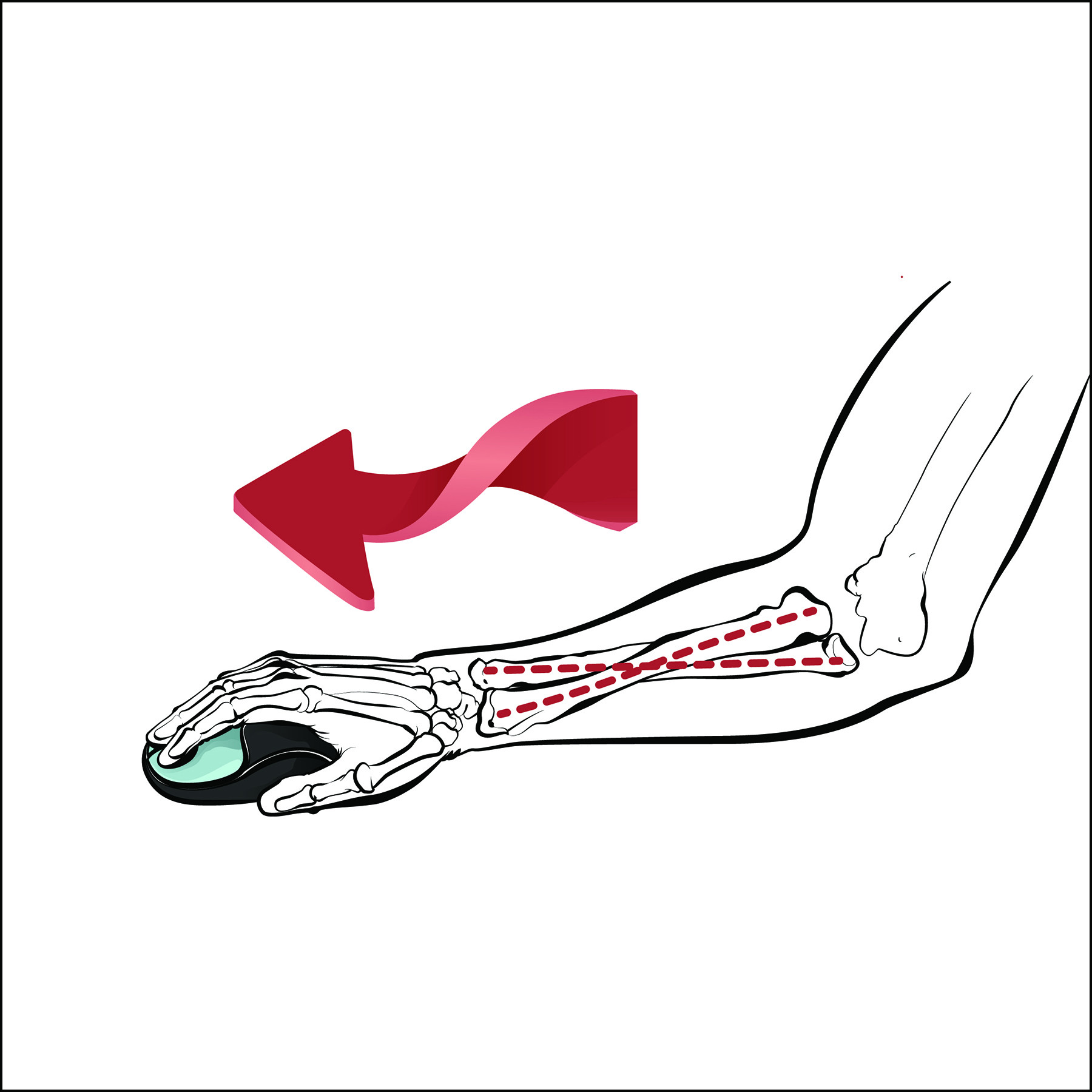 c24d8722a80 Mouse design influences the forearm position - a standard mouse requires  the hand to be held in a pronated position.